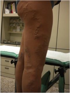 Togliere uninfiammazione su una gamba a varicosity