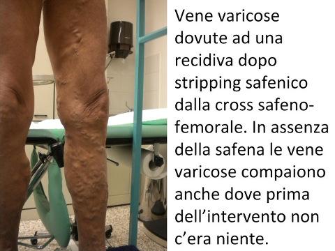 Ultrasonography di vene di gambe in Tula