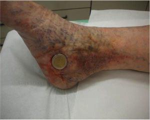 Quali prodotti devono esser esclusi a varicosity di vene