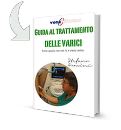 ebook vene varicose