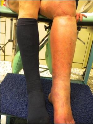 vene ostruite gambe rimedi